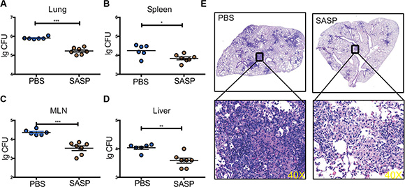 Disruption of xCT by SASP enhanced mycobacteria clearance in mice infected with Mtb.
