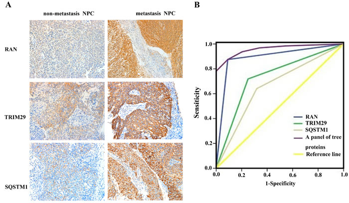 Expressional changes of TRIM29, RAN, and SQSTM1 in NPC tissues and their efficacy in discriminating metastatic NPC from non-metastatic NPC.