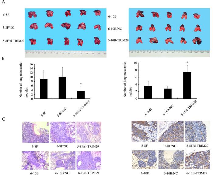 The effect of TRIM29 on NPC cell metastasis