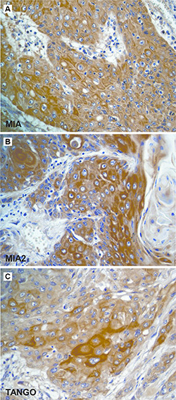 Immunostaining of the MIA gene family in esophageal cancer.