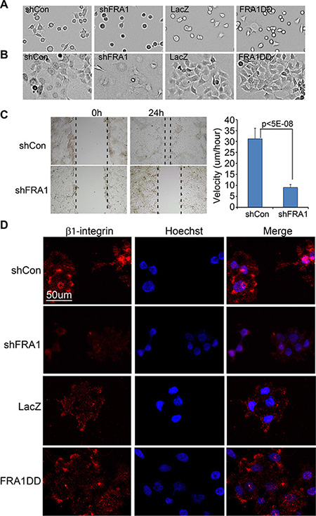 FRA1 promotes cancer cell adhesion and migration.