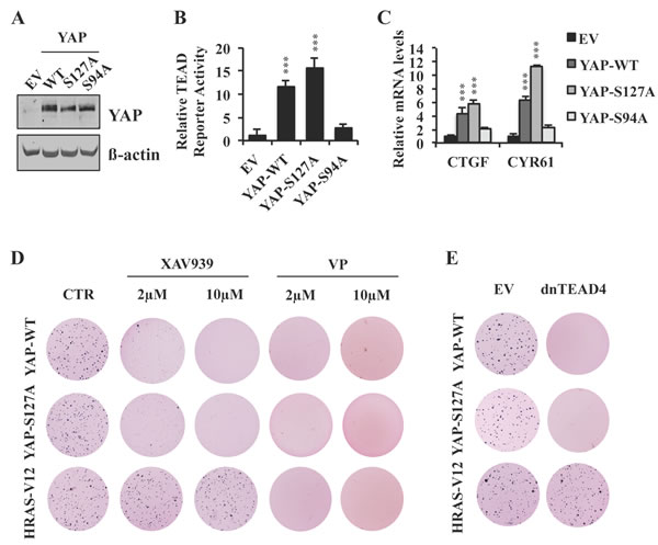 XAV939 inhibits YAP-dependent transformation by a S127 phosphorylation-independent mechanism.