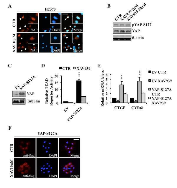 XAV939 induces YAP cytoplasmic relocalization.