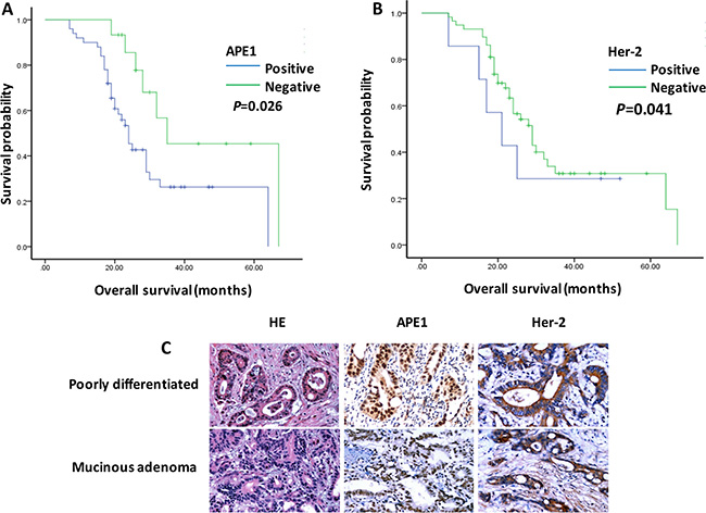 APE1 and Her-2 overexpression associated with poor prognosis of patients with gastric cancer.