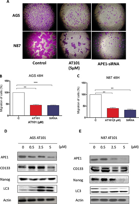 Suppression of APE1 enables to inhibition of gastric cancer cells migration and renewal features.
