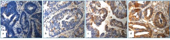 Detection of APAF-1 expression using immunohistochemical assay.