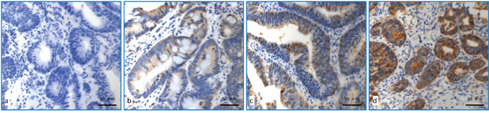Detection of COX-2 expression using immunohistochemical staining.