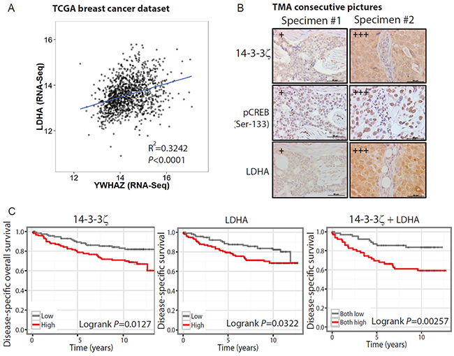 The 14-3-3ζ-LDHA signaling axis holds prognostic value in predicting clinical outcome.