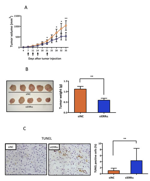 Effect of ERRα knockdown on proliferation and angiogenesis of endometrial cancer cells