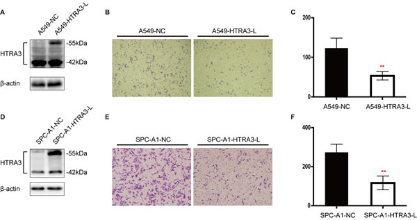 Effect of forced HTRA3 expression on cell invasiveness in NSCLC.