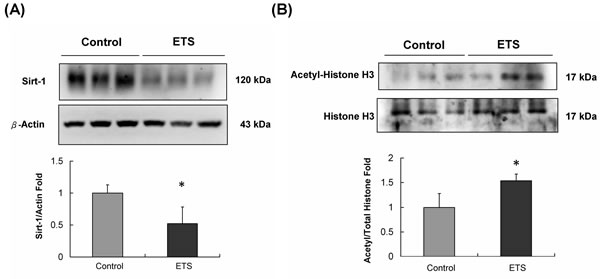 Sirt-1 protein level and its deacetylase substrate protein analysis.