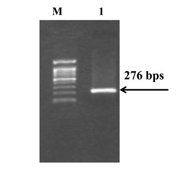Amplified gene fragment of interest by PCR M= 100bp DNA Marker; Lane 1 = PCR products containing polymorphic site of rs 1800925.