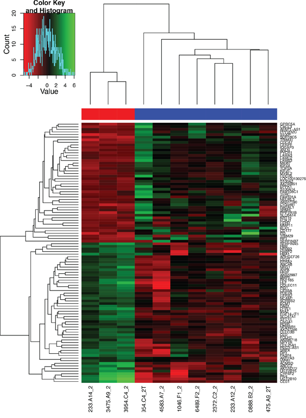 Heat map of the 100 most overexpressed (red) and underexpressed (green) genes in the formalin-fixed, paraffin-embedded GBC specimens.