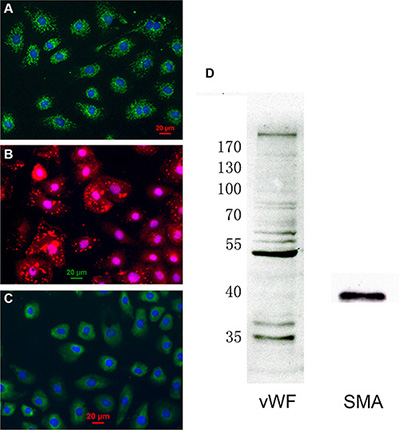Characterization of cardiac microvascular endothelial cells (CMECs).