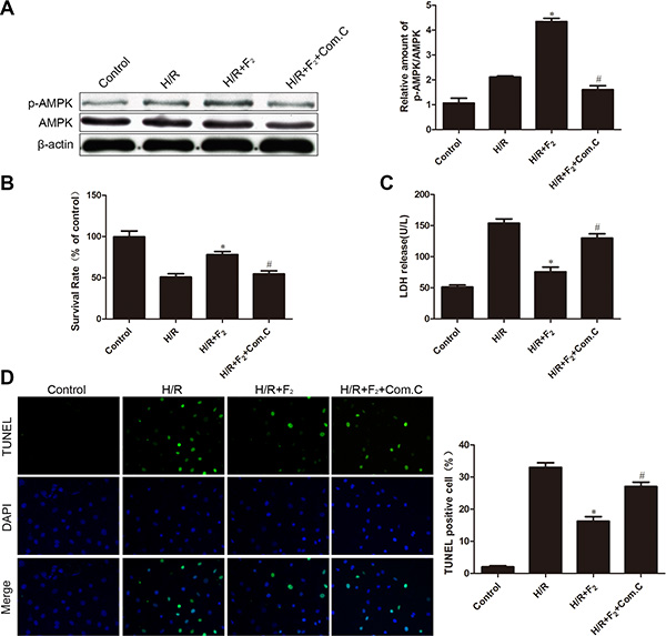 Influence of AMPK inhibitor compound C on F2-mediated phosphorylation of AMPK and H/R injury.