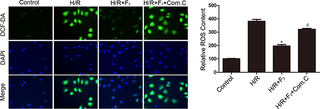 Influence of AMPK inhibitor compound C on F2-mediated decreases in ROS levels in CMECs after H/R, as assessed by DCFH-DA staining.