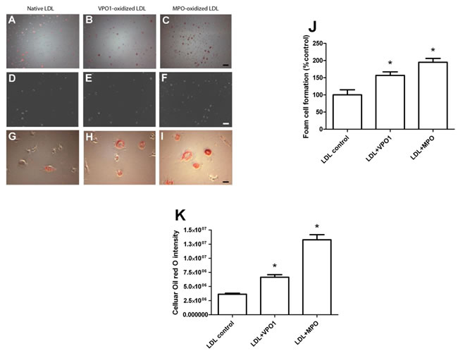 VPO1-oxidized LDL induces foam cell formation.