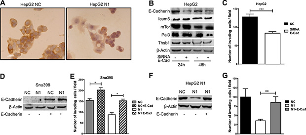 E-Cadherin induces invasion in hepatocellular carcinoma.