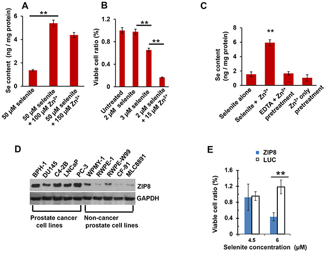 Intracellular Se content and toxicity; ZIP8 protein levels in human prostate cancer cells.