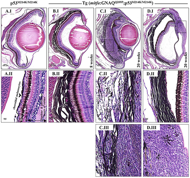 Co-operation of oncogenic GNAQQ209P and p53 loss-of-function results in UM development.