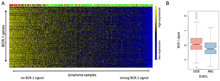 The BCR.1 index characterizes individual aggressive NHL and discriminates between ABC- and GCB-like DLBCL.
