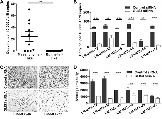Silencing GLIS3 results in the abrogation of melanoma invasion in vitro