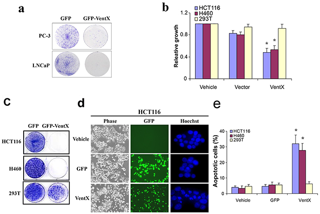 VentX suppresses the growth of human cancer cells and induces apoptosis.