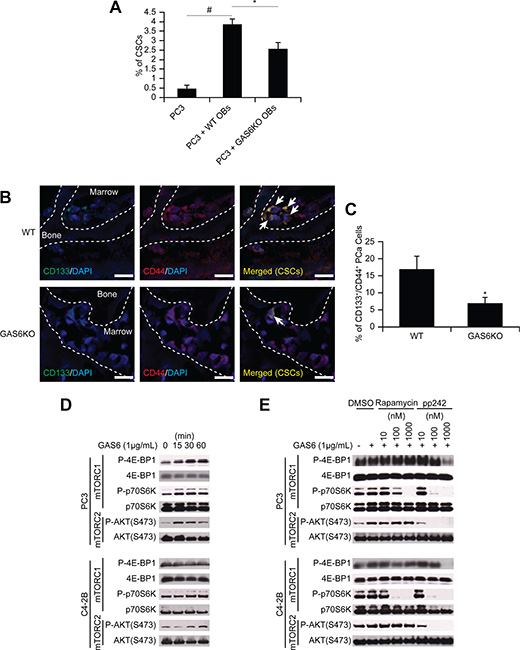GAS6 expressed by the osteoblastic niche controls the conversion of DTCs to CSCs through mTOR signaling.