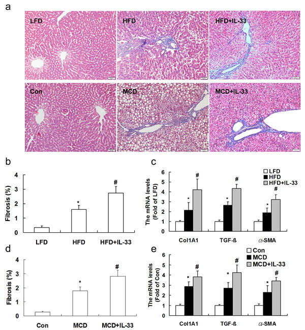 Mice were exposed to HFD or MCD, and treated with recombinant IL-33.