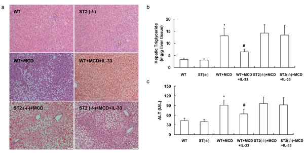 ST2 knockout mice and wild-type mice were fed with MCD, and treated with recombinant IL-33 for 10 weeks.