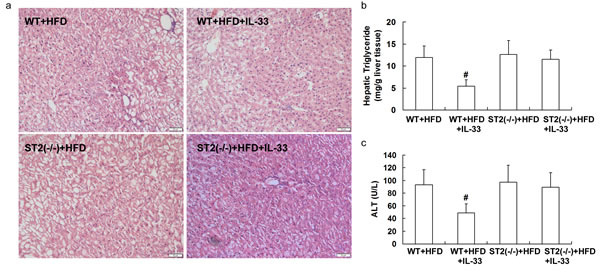 ST2 knockout mice and wild-type mice were fed with HFD, and treated with recombinant IL-33.