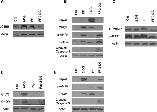 Autophagy activation, energy and ER stress induction in cells treated with FF or 2-DG alone or in combination.