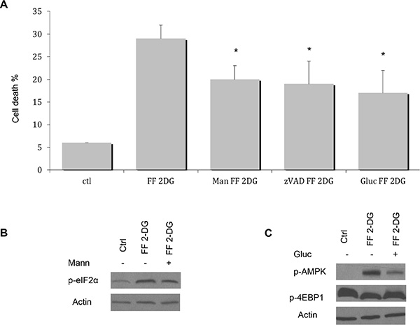 Effects of exogenous mannose or glucose on cell death induced by the combination of FF and 2-DG.