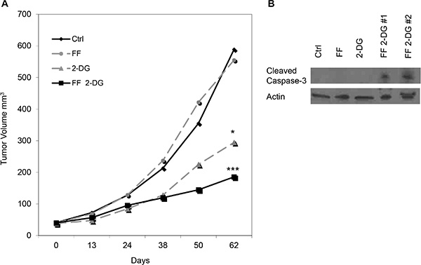 Effect of 2-DG and FF, alone and in combination, on growth of human melanoma xenografts in nude mice.