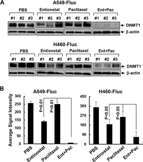 Entinostat reduces the expression of DNMT1 and its combination with paclitaxel exerts more potent inhibitory effects on DNMT1 in vivo.