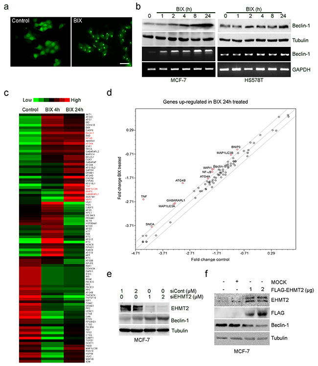 Inhibition of EHMT2 increases Beclin-1 expression.
