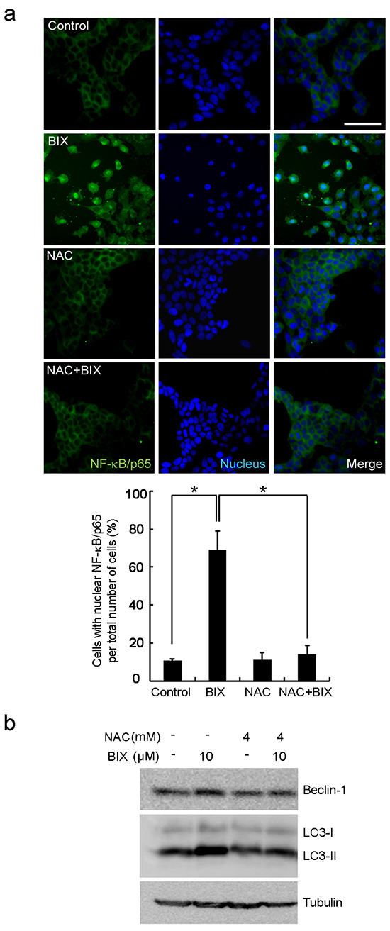 Intracellular ROS-mediated activation of autophagy in response to EHMT2 inhibition.