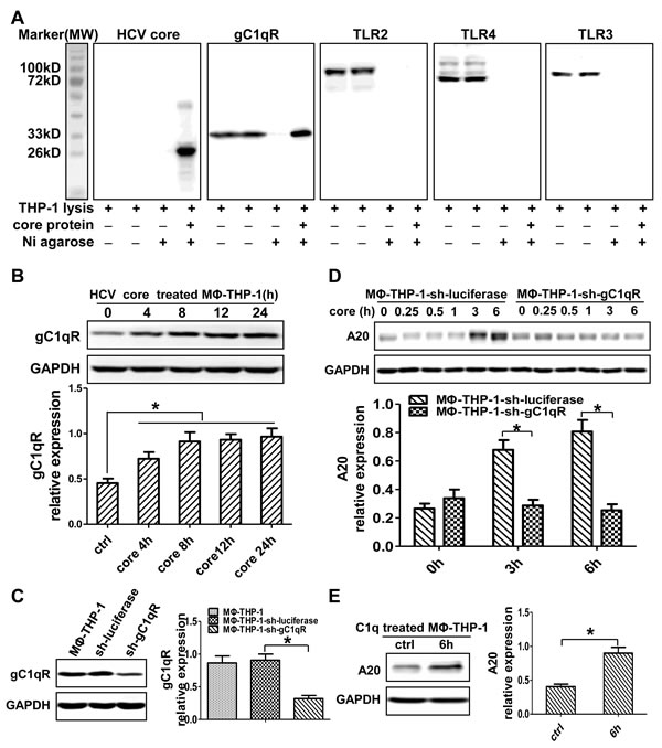 HCV core protein interacting with gC1qR induces A20 expression.