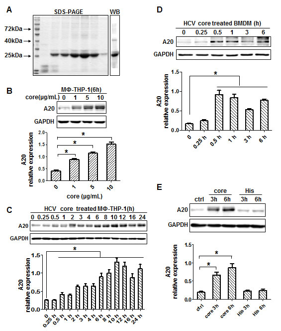 HCV core protein induces A20 expression.