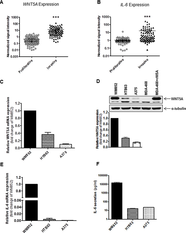 Increased expression of WNT5A and IL-6 is associated with an invasive melanoma cell phenotype.