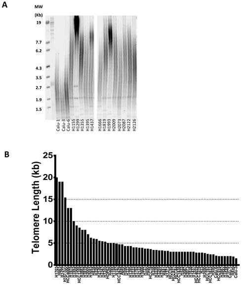 Heterogeneity of telomere length in NSCLC.