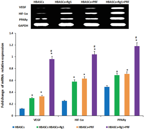 mRNA expression of PPARγ, HIF-1α, and VEGF were much higher in neogenetic adipose tissue of group D than in the other three groups, and had a reasonably higher expression in the single treated groups.