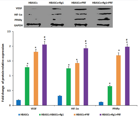 The protein expression of PPARγ, HIF-1α, and VEGF were much higher in neogenetic adipose tissue of group D than in the other three groups, and had a reasonably higher expression in the single treated groups.