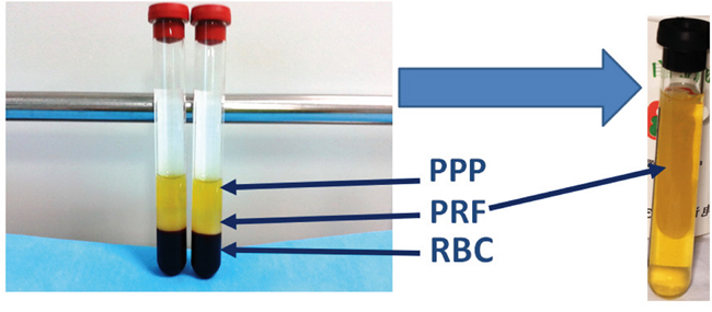 Isolation of PRF clots from venous whole blood after centrifugation:
