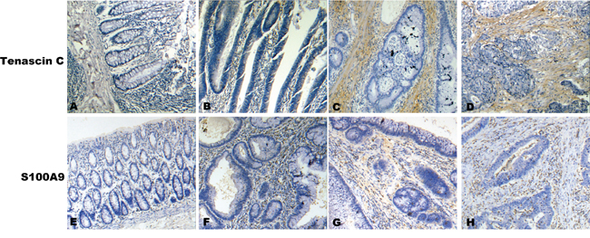 A representative result of immunohistochemistry shows the expression of TNC, S100A9 in stroma at NCM, ACP, CIS and ICC.