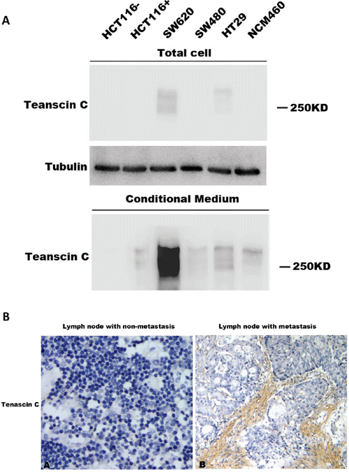 Expression of TNC in conditioned medium and its association with metastasis.