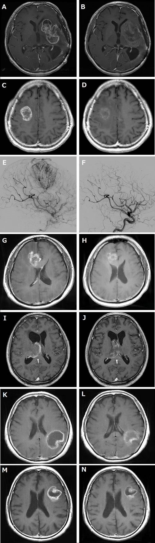 MRI and angiography of before and after neoadjuvant bevacizumab (Bev).