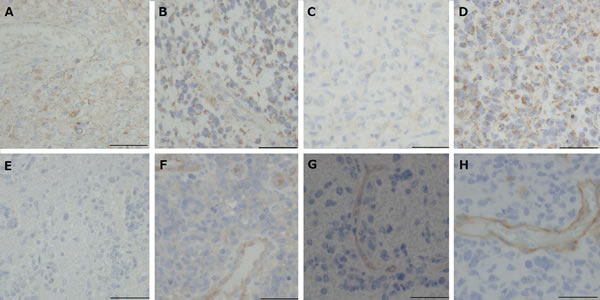 Immunohistochemical analysis for VEGF and VEGFRs in tumors resected under neoadjuvant bevacizumab (Bev) as compared with that in control glioblastomas.