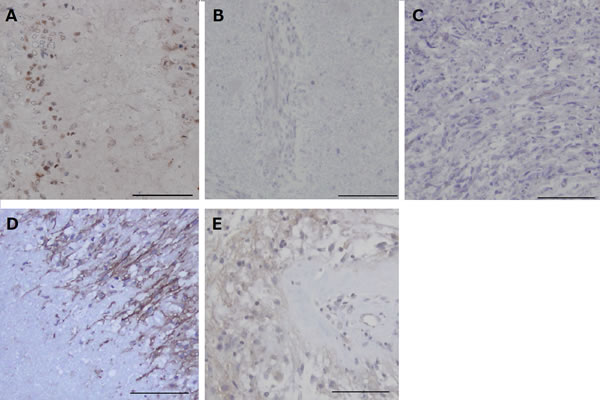 Immunohistochemical analysis for HIF-1α and CA9 in the tumors resected under neoadjuvant bevacizumab (Bev) as compared with that in control glioblastomas.