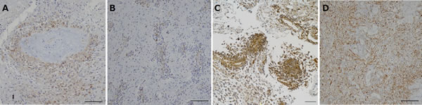 Immunohistochemical analysis for nestin in tumors resected under neoadjuvant bevacizumab (Bev) as compared with that in control glioblastomas.